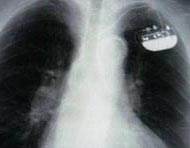 X-ray of a single-chamber implanted pacemaker